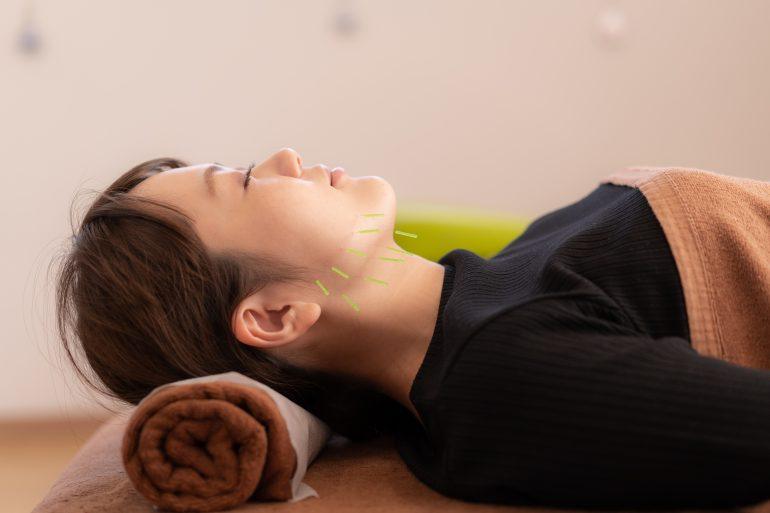 ニキビ・肌荒れ|福島市のフェイシャルエステは美容鍼ができる桂はり・きゅう整骨院