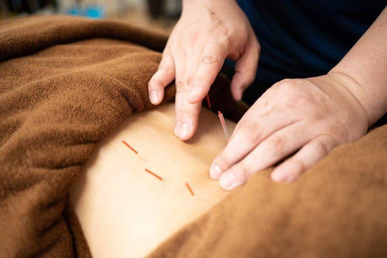 腰痛には鍼灸施術