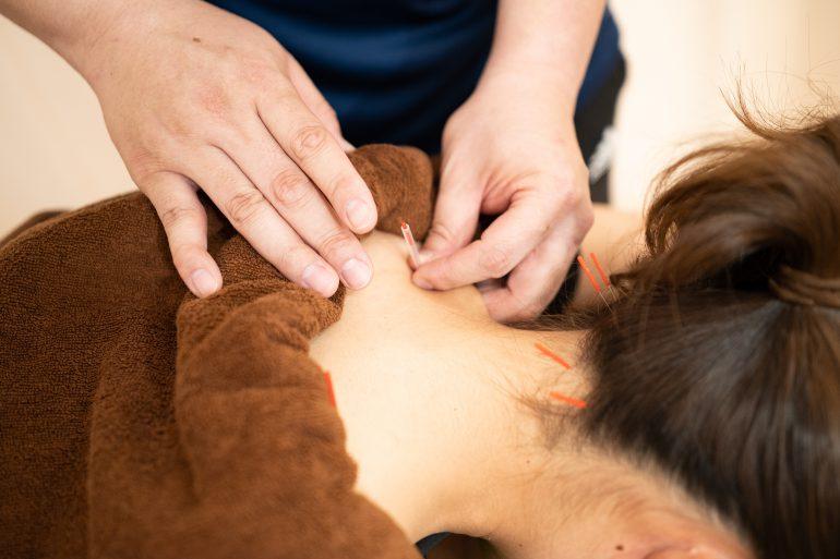 鍼灸|福島市の桂はりきゅう整骨院