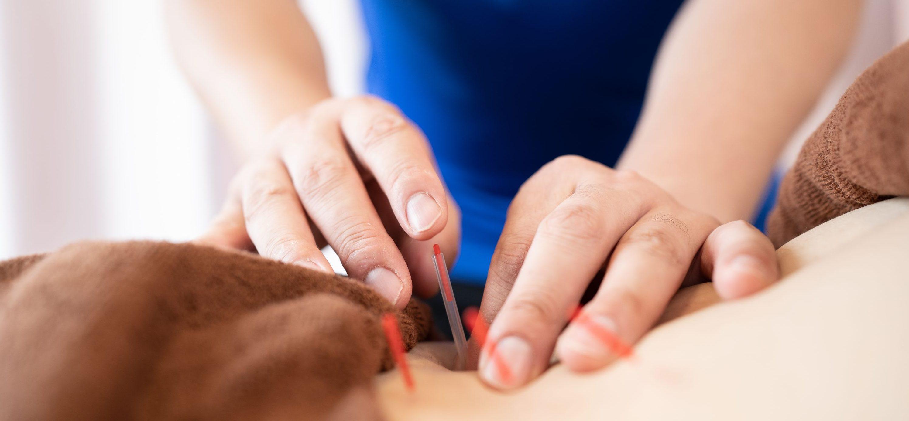 スポーツ鍼灸|福島市の桂はり・きゅう整骨院