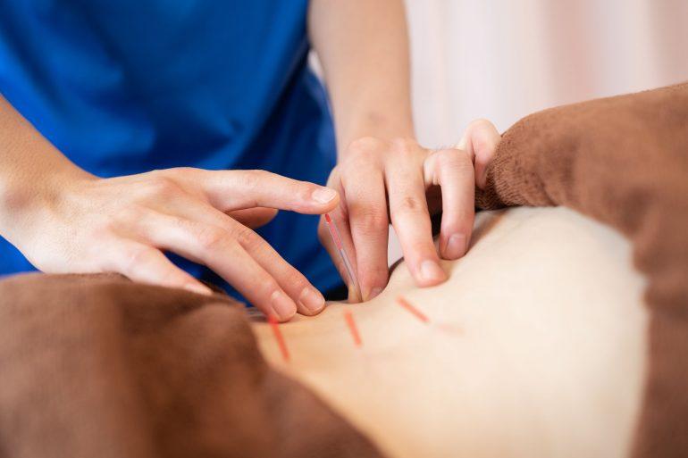 鍼灸施術|福島市の桂はり・きゅう整骨院