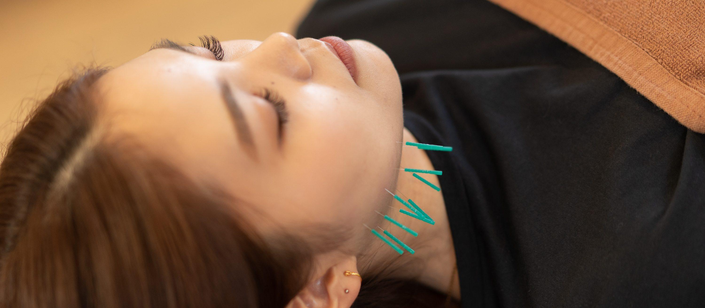 美容鍼|福島市でフェイシャルエステは桂はり・きゅう整骨院